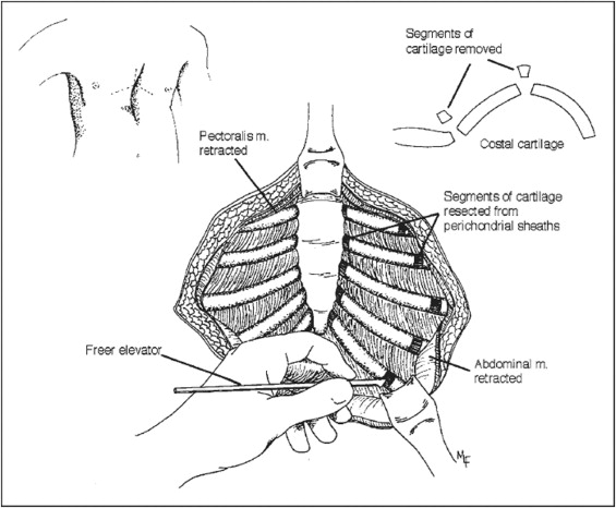 current readings  surgical repair experience of congenital